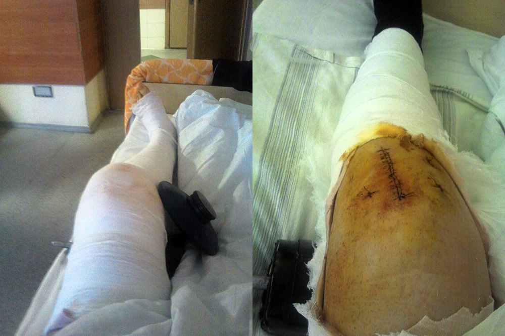 Моя нога после операции: в первый день и через четыре дня